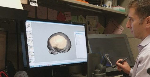 3D Imaging & 3D Printing in Healthcare Reconstructive Surgery